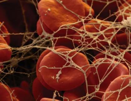 Parámetros de coagulación y fibrinólisis