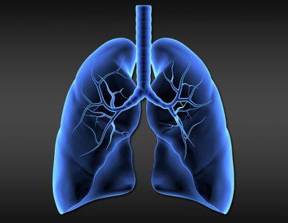 Reslizumab en el asma eosinofílica no controlada